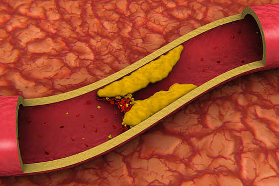 Холестерин в крови - наглядный пример.