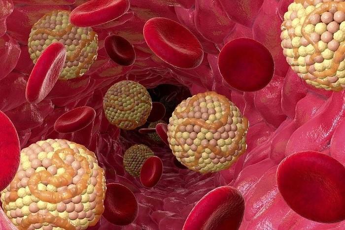 Что такое холестерин? Холестерин в крови.